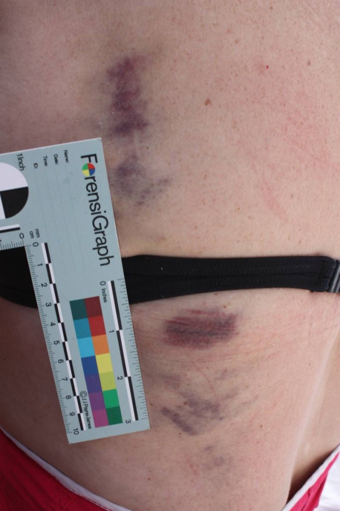 Bruises from cockpit fall and fractured rib - captured by a ForensiGraph!